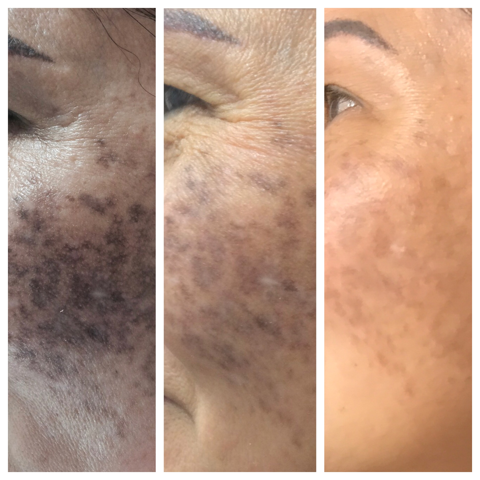 Dark Spot Removal Before and After